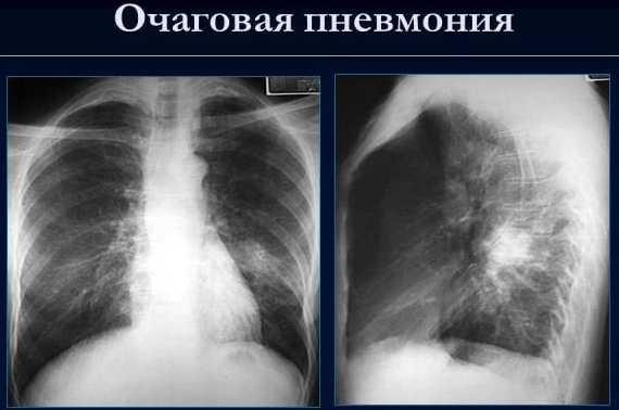 Снимок воспаления легких у ребенка