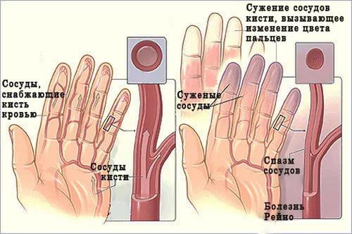 Сужение сосудов при цианозе