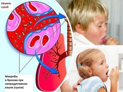 Сухой кашель причины