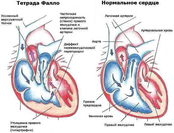 Тетрада фалло врожденный порок сердца у новорожденных