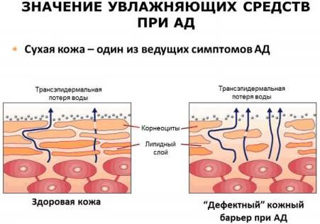 Увлажнение при атопическом дерматите у грудничков