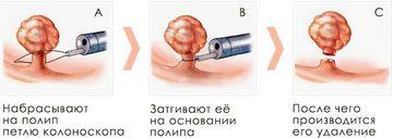 Удаление полипов в носу у ребенка