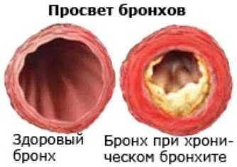 Хронический бронхит у грудных детей