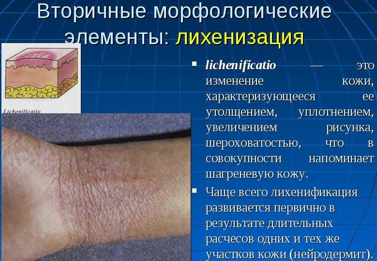 лихенизация-последствие экземы на руках у детей