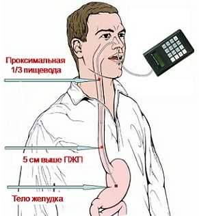 Суточная pH-метрия при гастроэзофагеальном рефлюксе у детей
