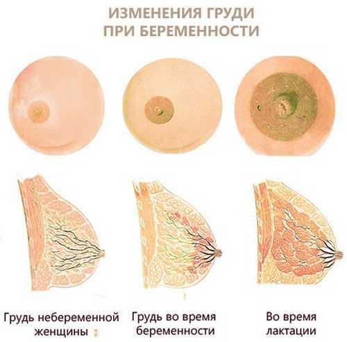Грудь в первые дни беременности