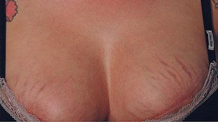 На коже груди при беременности возникают красные рубцы