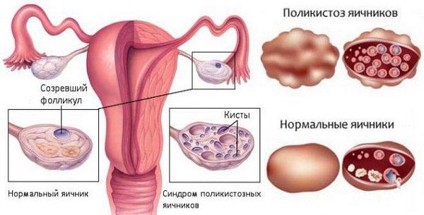 Поликистоз яичников - одна из причин почему может быть задержка месячных кроме беременности