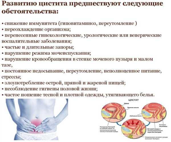 Цистит при беременности: лечение, симптомы, причины badiga.ru