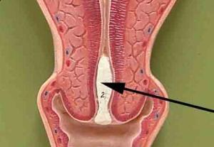 Пробка при беременности в шейке матки