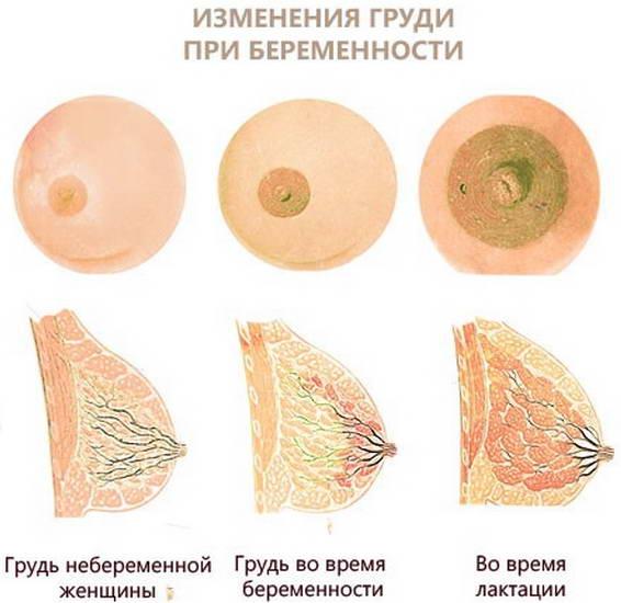 Соски и молочные железы трансформируются, поэтому болит грудь при беременности